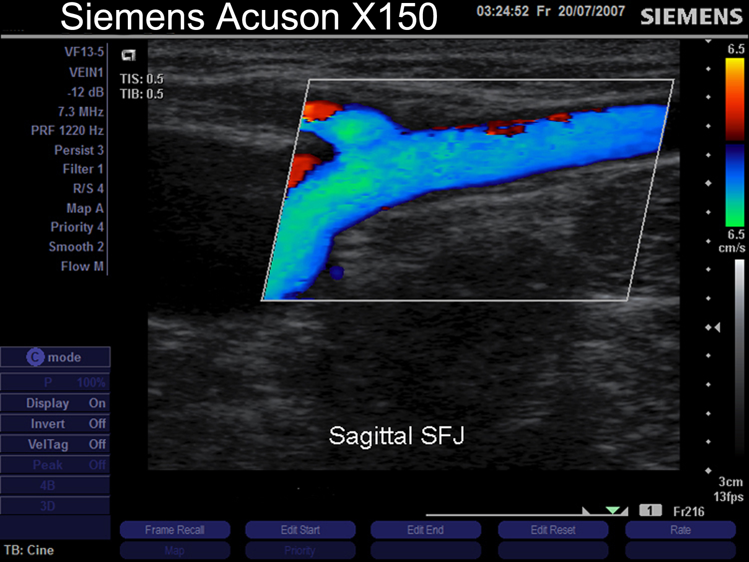 Siemens Acuson x150 ultrasound machine