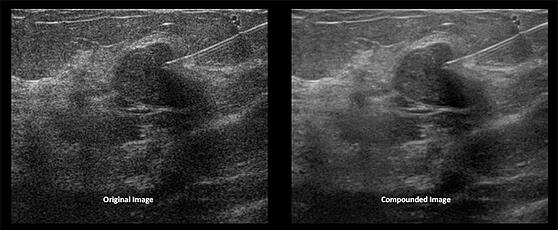 ultrasound-needle-guidance-compounded-image.jpg